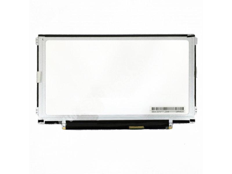 11.6 Slim LED Ekran 40Pin (Sağ-Sol Kulaklı) ERSEN TEKNOLOJİ - Sahibinebak.com