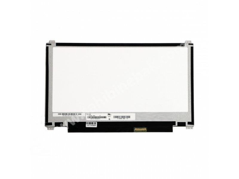 11.6 Slim LED Ekran 30Pin (Alt-Üst Kulaklı) ERSEN TEKNOLOJİ - Sahibinebak.com